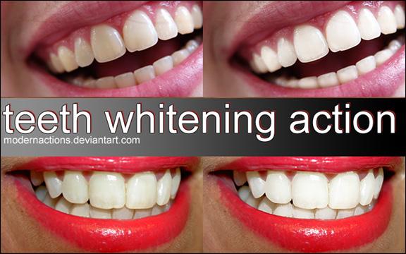 TeethWhite