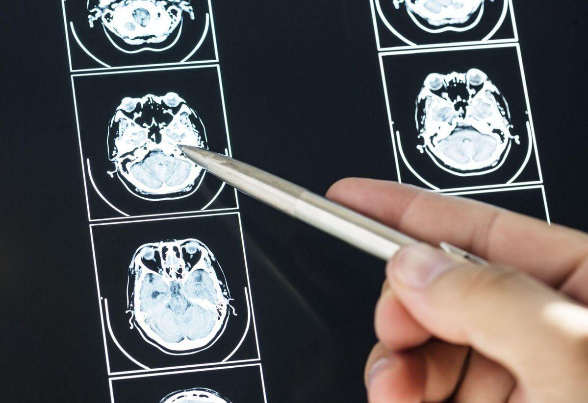 neuromarketing badania